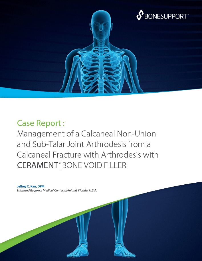 Management of a calcaneal non-union and sub-talar joint arthrodesis from a calcaneal fracture with arthrodesis with CERAMENT BONE VOID FILLER