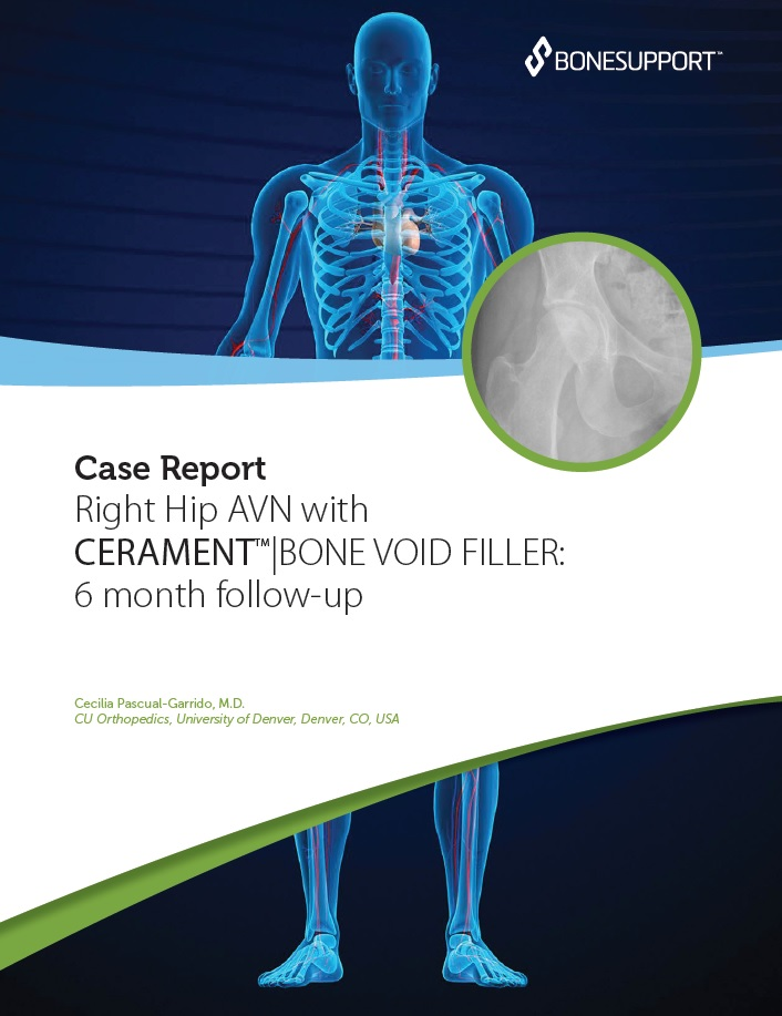 Right hip AVN with CERAMENT BONE VOID FILLER: 6 month follow-up