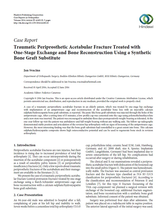 Traumatic periprosthetic acetabular fracture treated with one-stage exchange and bone reconstruction using a synthetic bone graft substitute