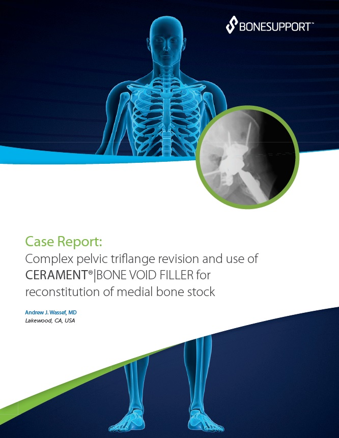 Complex pelvic triflange revision and use of CERAMENT®|BONE VOID FILLER – for reconstitution of medial bone stock