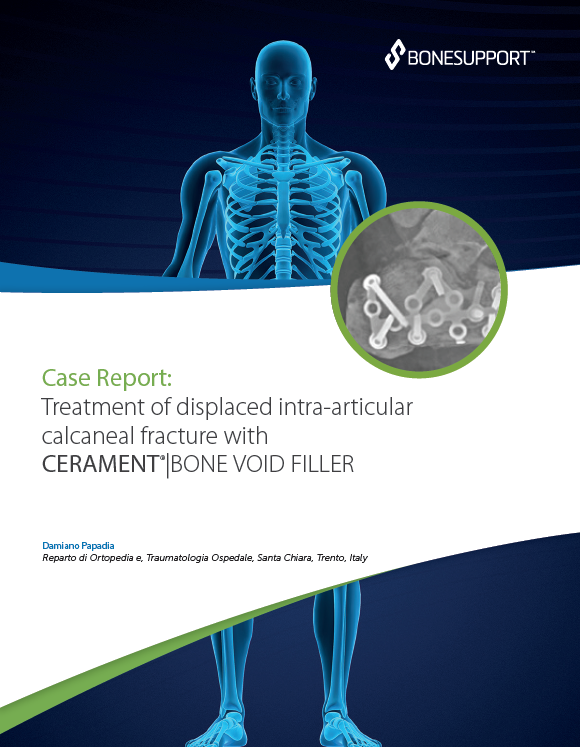 Treatment of displaced intraarticular calcaneal fractures with CERAMENT BONE VOID FILLER in 54 year-old female
