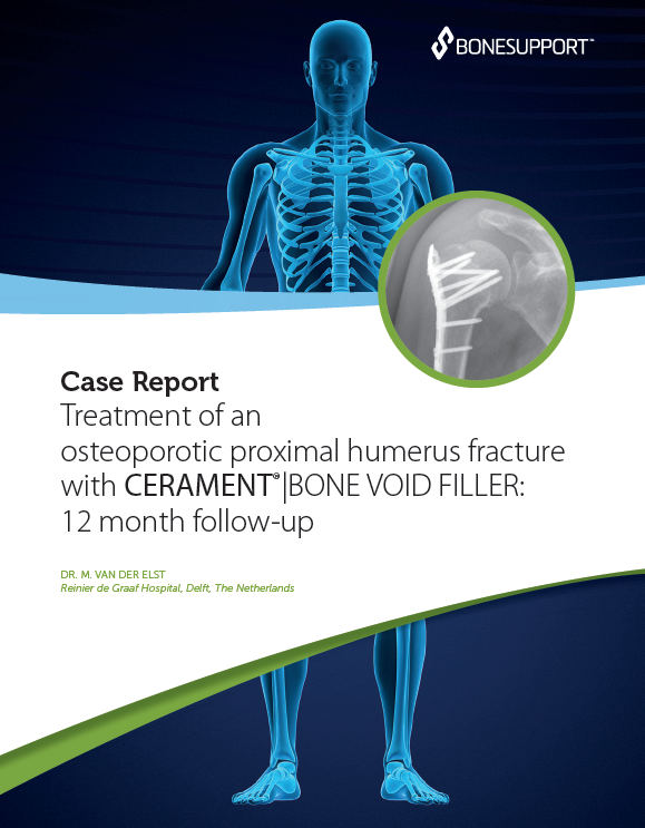 Van der Elst Treatment of an osteoporotic proximal humerus fracture with CERAMENT® | BONE VOID FILLER 12 month follow-up