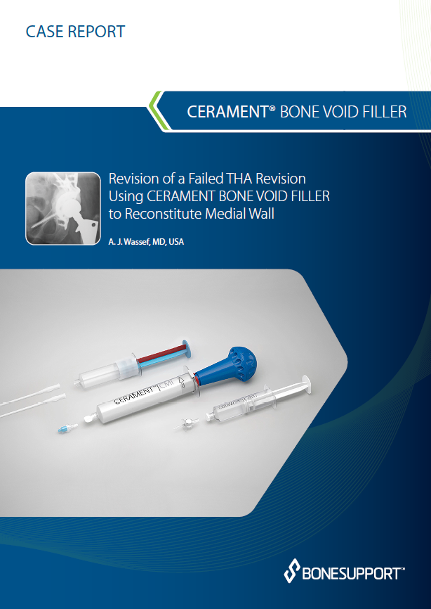 Wassef Revision of a failed THA revision using CBVF  to reconstitute medial wall