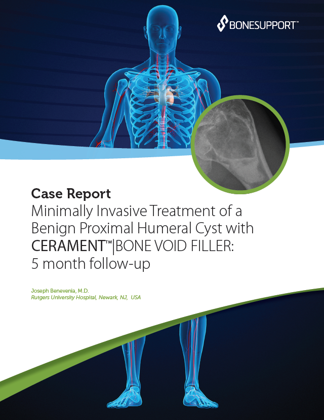Benevenia Minimally Invasive Treatment of a Benign Proximal Humeral Cyst with CERAMENT BONE VOID FILLER: 5 month follow-up